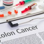 Colorectal cancer: Everything you need to know